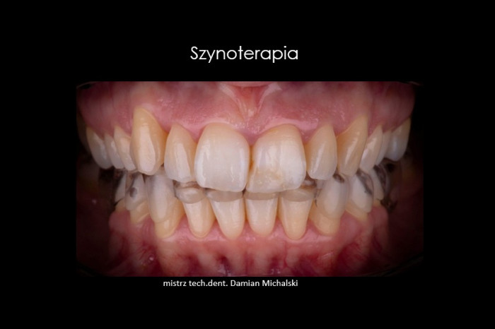 szynoterapia